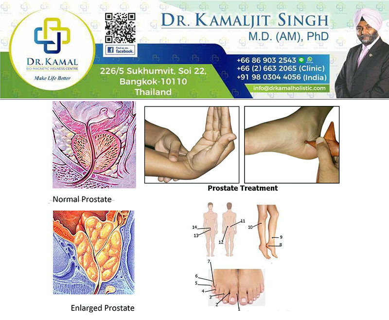 ACUPRESSURE FOR-ENLARGED PROSTATE: A SIMPLE TREATMENT USING